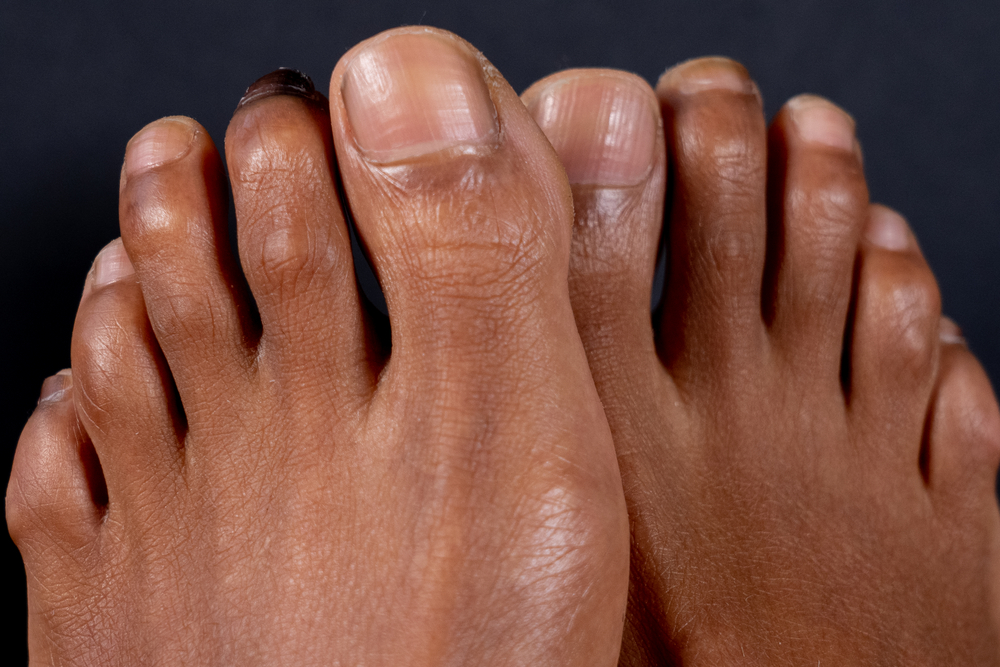 What can a podiatrist do for a hammer toe?